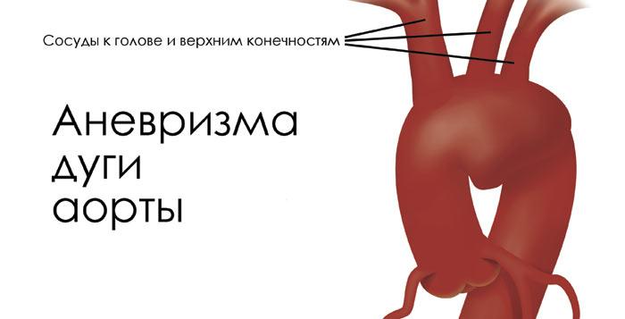 Аневризма сердца и секс