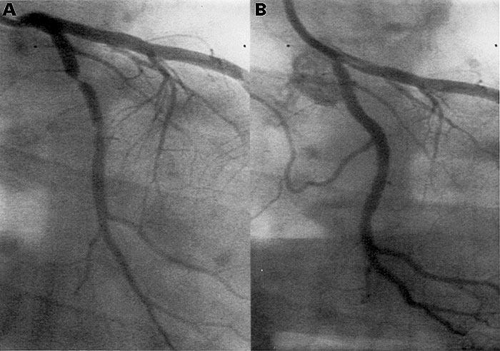 коронарография после инфаркта миокарда